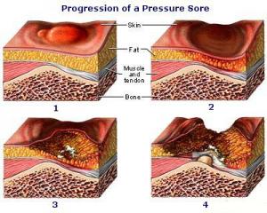 Progression of a Pressure Sore